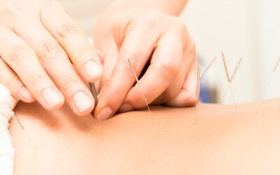 Acupuncture and Surrogacy